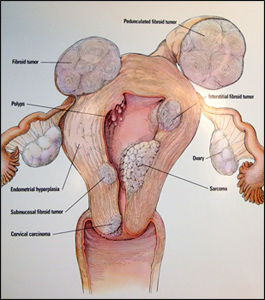 Myomectomy for fibroids