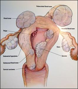Myomectomy for fibroids